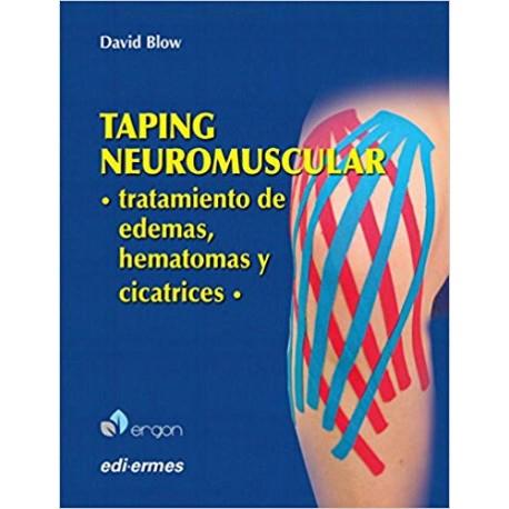 Taping neuromuscular. Tratamiento de edemas, hematomas y cicatrices