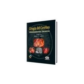 Cirugía del Cerebro Mínimamente Invasiva + DVD